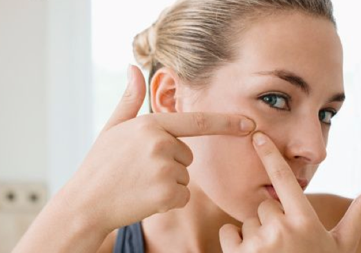 how to avoid getting acne while sleeping
